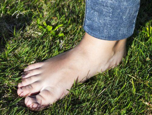Haluksy – choroba zwyrodnieniowa stóp