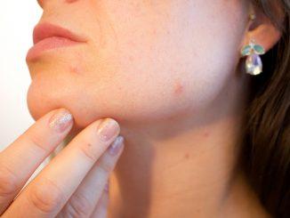 Co powoduje trądzik u kobiet?
